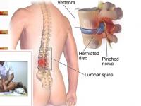 L'ernia del disco necessita sempre di un intervento chirurgico? L'osteopatia può essere una soluzione?